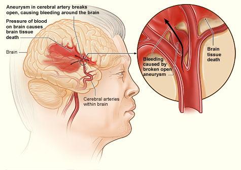 hersenen infarct